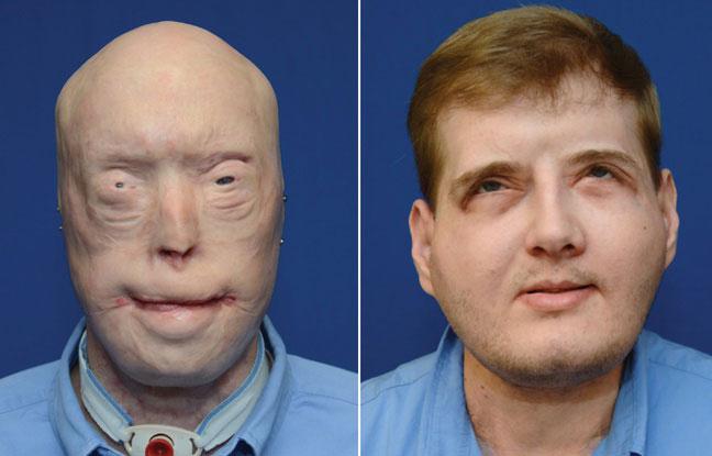 Un an après sa greffe complète du visage, Patrick Hardison mène une vie «normale»