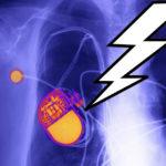 Certains pacemakers pourraient être piratés, avertit la FDA américaine