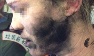 Des écouteurs sans fil explosent dans un avion et brûlent une Australienne