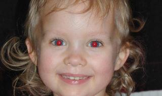 Pourquoi l'effet yeux rouges sur les photos et comment le supprimer facilement