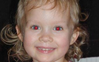 Pourquoi l'effet yeux rouges sur les photos et comment le supprimer facilement?