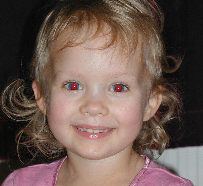 Pourquoi l effet yeux rouges sur les photos et comment le for Interieur yeux rouge