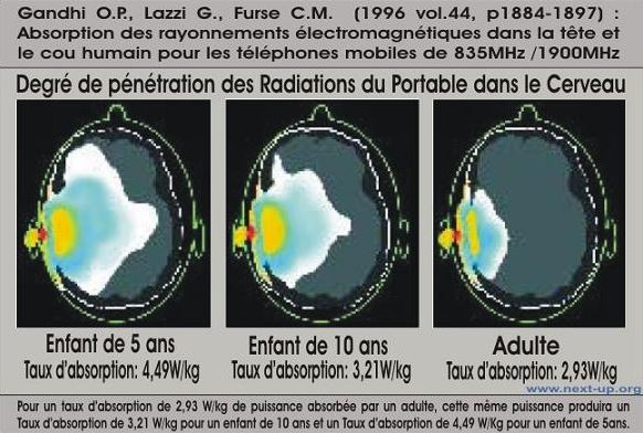degre penetration radiation portable cerveau