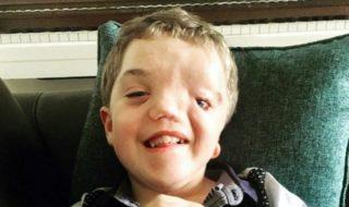 Instagram censure la photo d'un garçon défiguré par une maladie