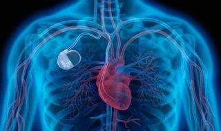 465 000 pacemakers sont rappelés par peur de piratage